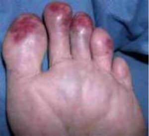 chilblains - Umina Podiatry