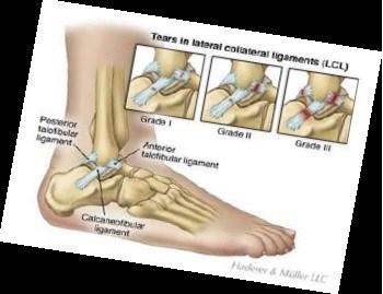 ankle sprains - umina podiatry