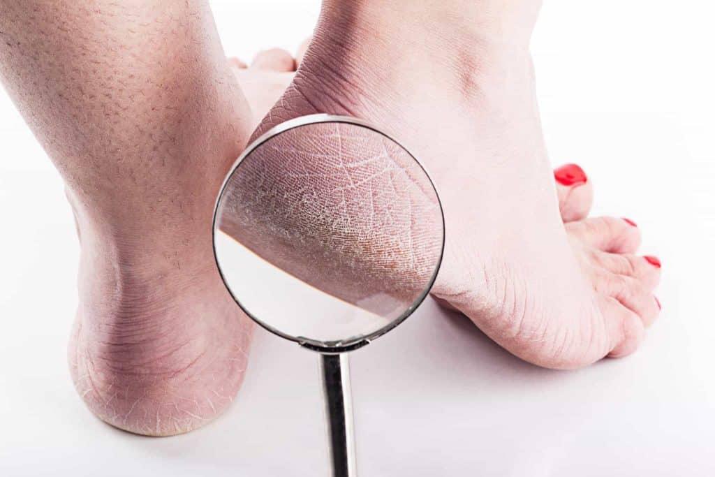 Dry Cracked Heel