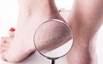 Podiatrists tips for dry skin